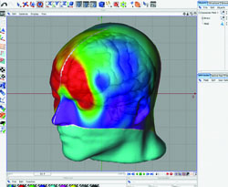 EEG image